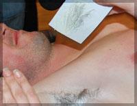 удаление волос у мужчин